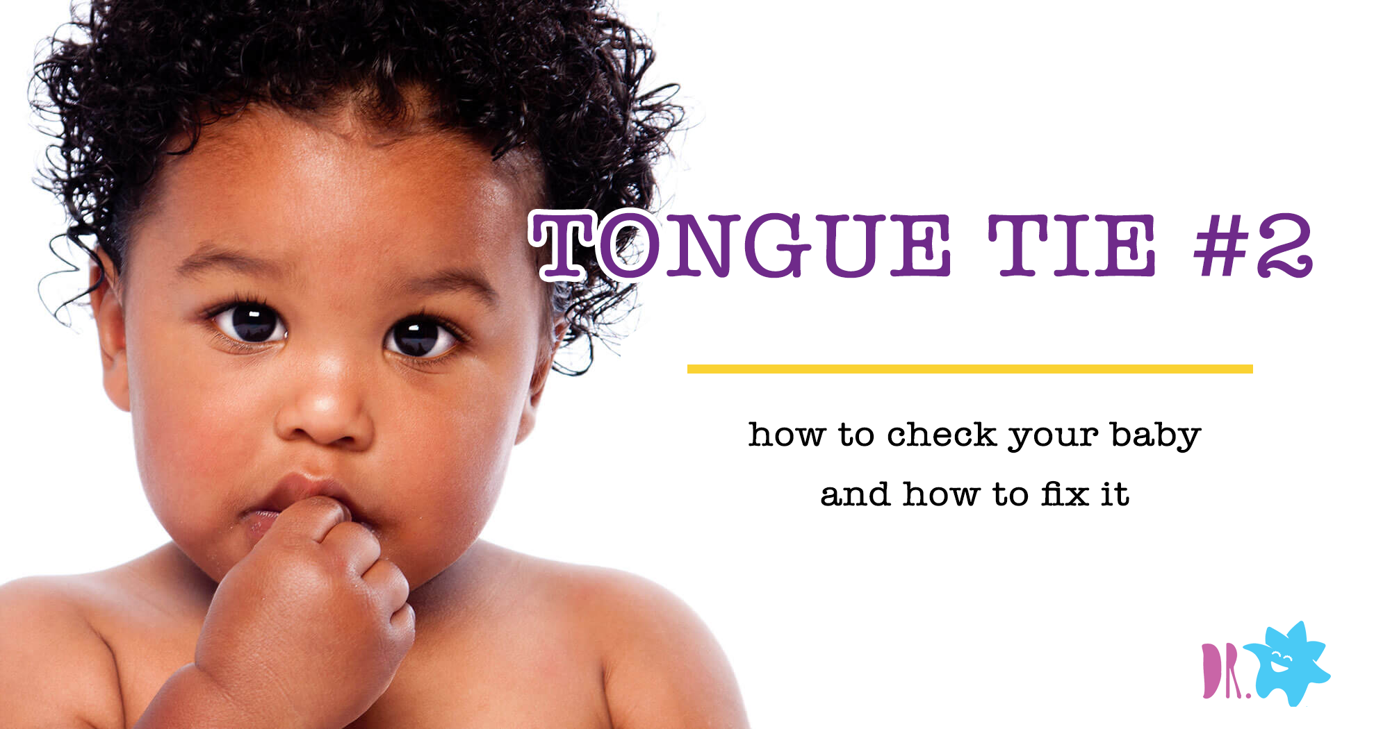 Tongue-Tie Dubai